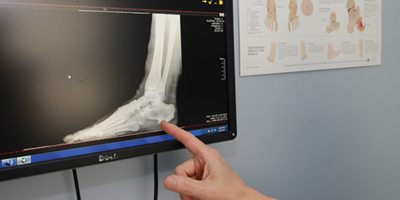 Podiatry X-Ray Equipment